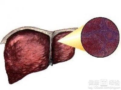 肝硬化假小叶红蓝铅笔手绘图