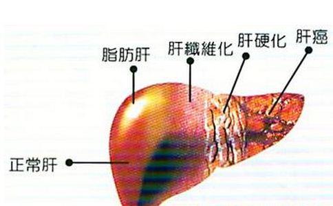 脂肪肝會引起肝硬化嗎 脂肪肝的治療原則 脂肪肝飲食注意